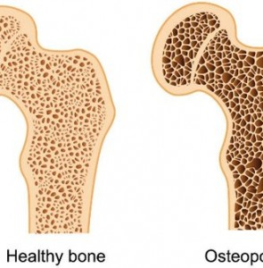 Osteoporosis at alarming level of 30% in Iran